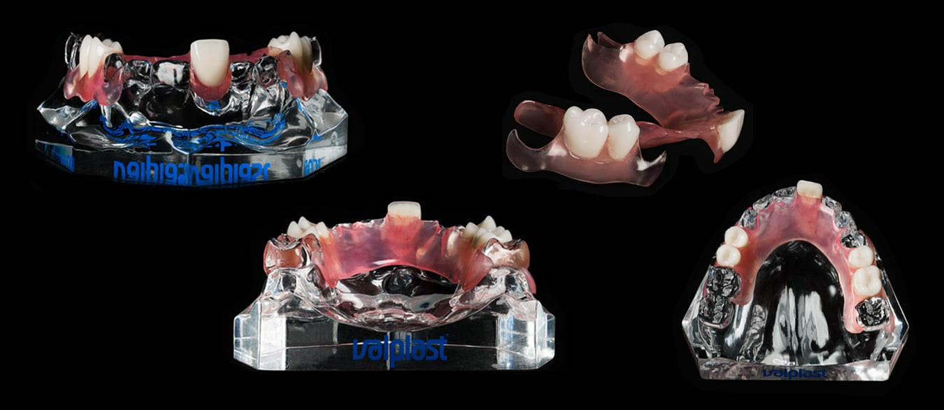 Valplast® Flexible Partials Pictures